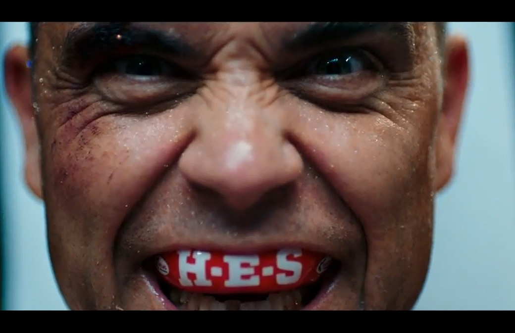Robbie Williams tease son nouveau clip